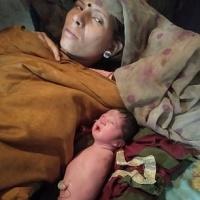 Niña nacida sin brazos ni piernas