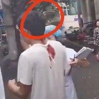 Hombre camina tranquilamente a la ambulancia con un cuchillo clavado en su cráneo