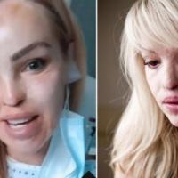Katie Piper se enfrenta a otra temporada en el hospital después de más de 200 operaciones desde el ataque con ácido